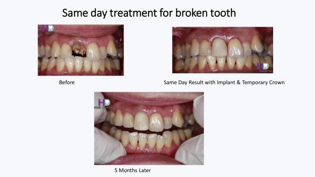 hue-implant1