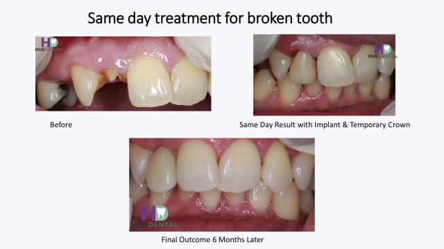 hue-implant2