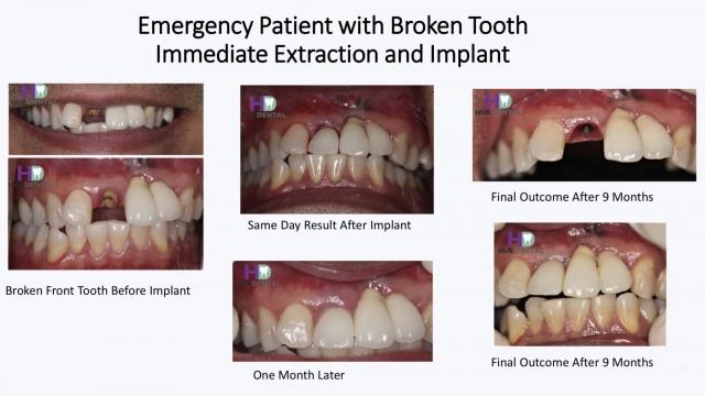 hue-implant3