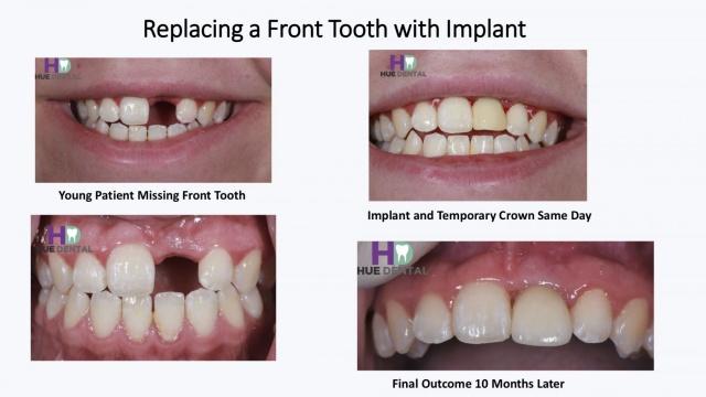 hue-implant4