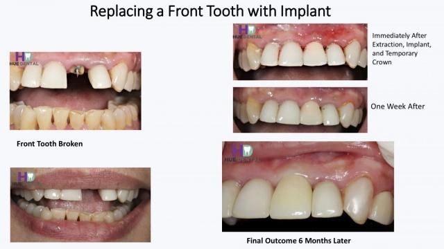 hue-implant5
