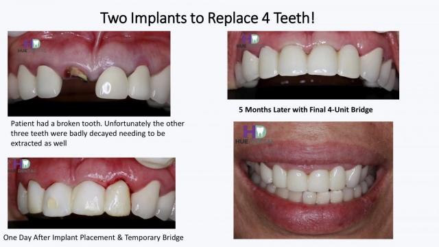 hue-implant6
